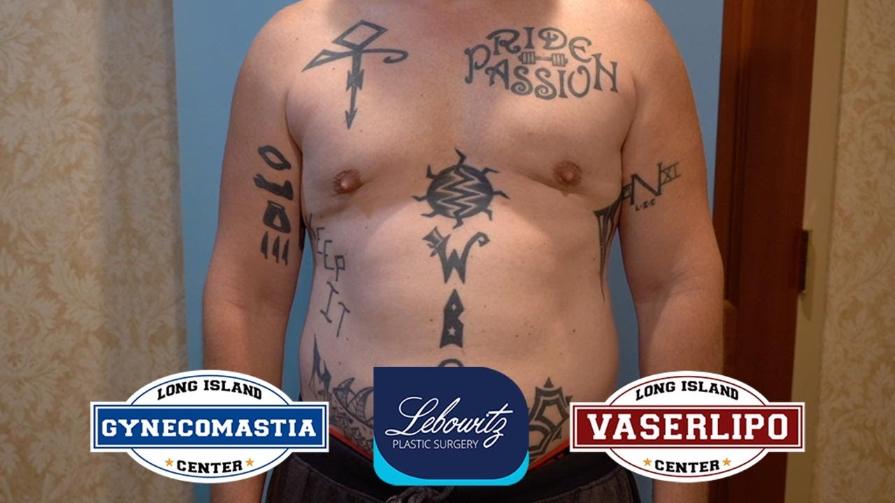 Gynecomastia Surgery: Vaser liposculpture, Renuvion & Fat Grafting on 35 y/o MALE from New York
