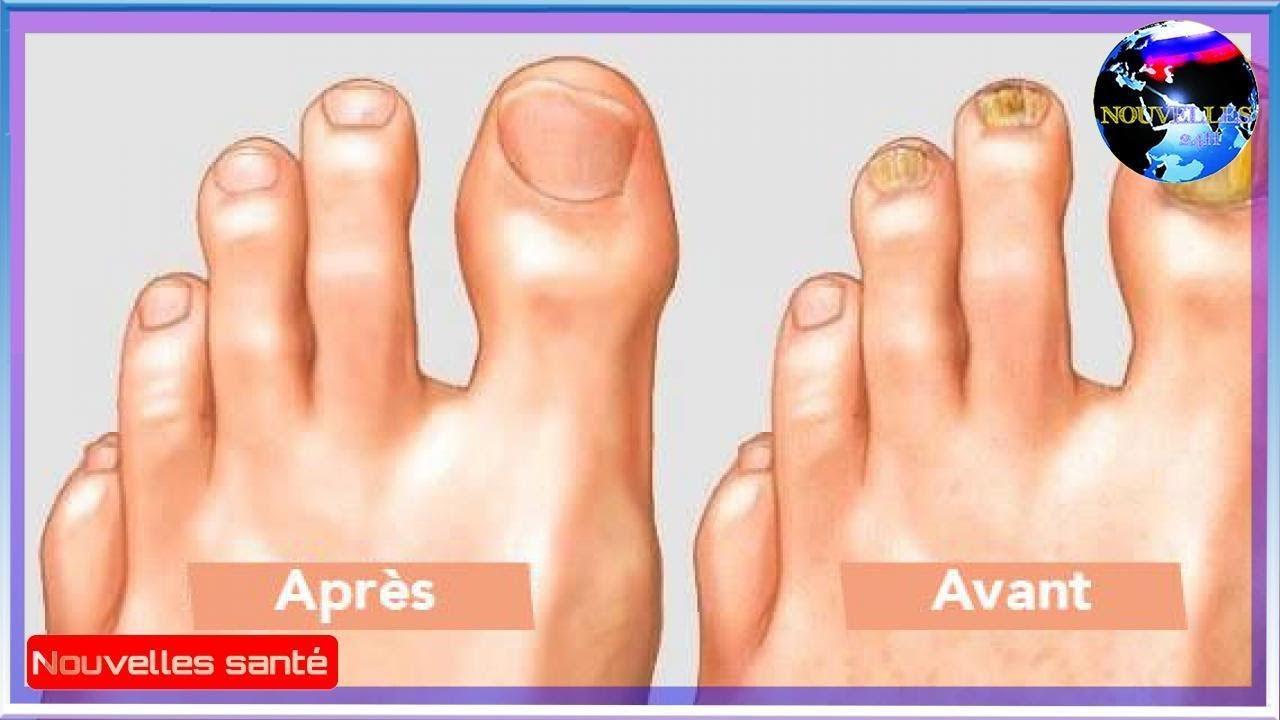 Trempez vos pieds dans ce mélange pour enlever le champignon de vos orteils naturellement! - YouTube