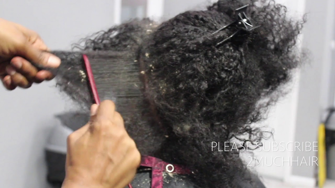 Picking BIG scalp flakes Psoriasis and Dermatitis SEW IN WEAVE REMOVAL