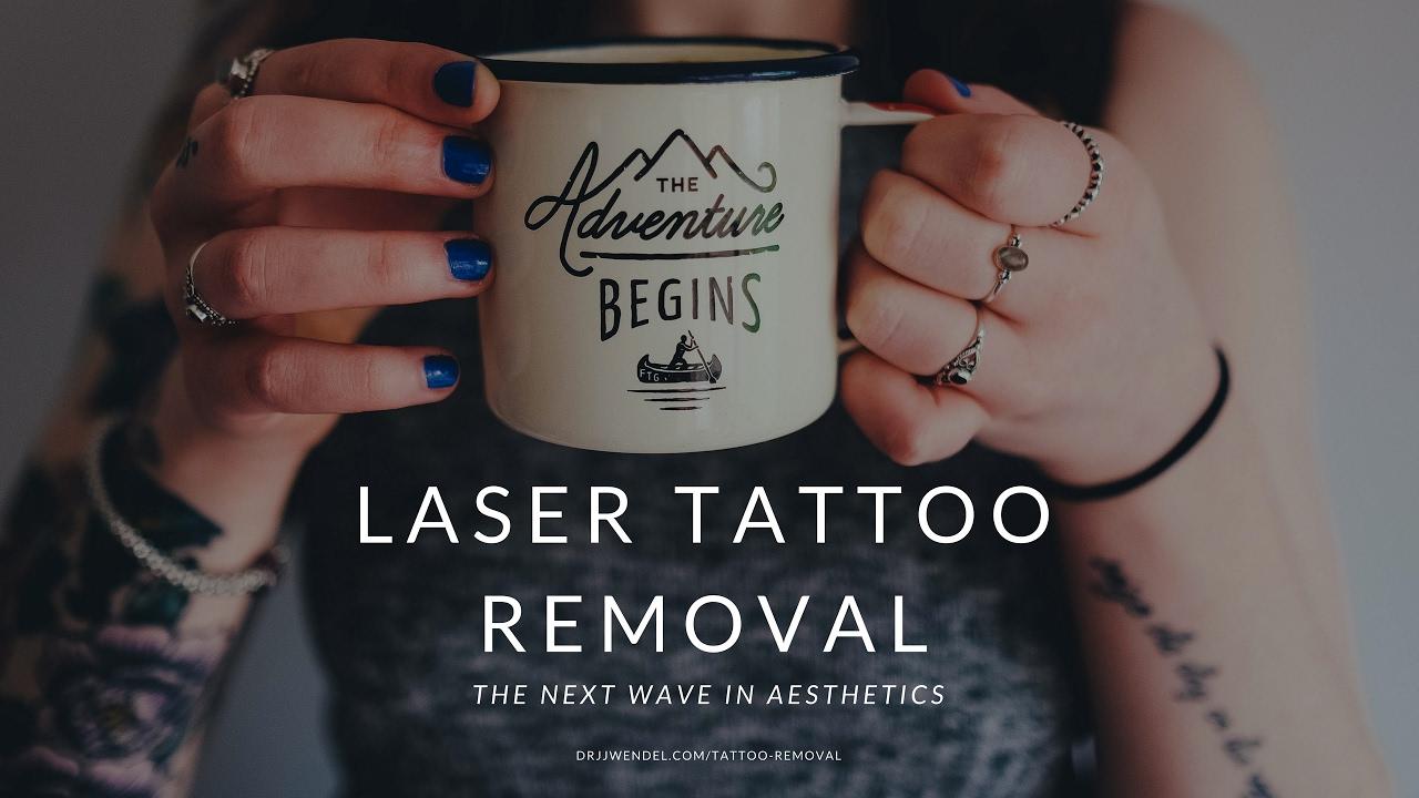 Tattoo Removal - Dr. J. J. Wendel Plastic Surgery - Nashville, TN