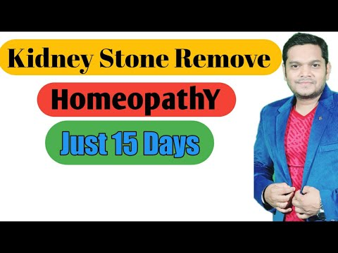 8.8 mm Kidney Stone Remove HomeopathY Just 15 Days