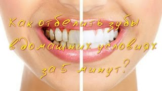 Как отбелить зубы в домашних условиях за 5 минут?(Как отбелить зубы в домашних условиях с помощью одной таблетки угля? Нам понадобиться: 1) Зубная паста. 2)..., 2016-07-02T10:56:01.000Z)