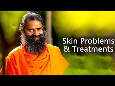 Skin Problems & Treatments | Swami Ramdev