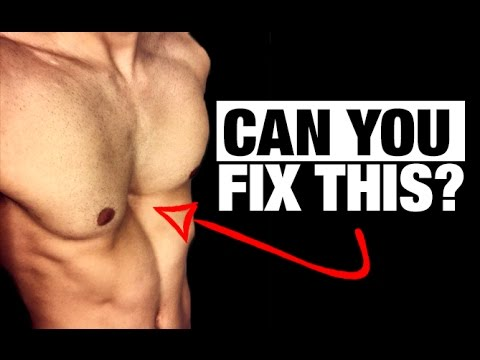 How to Fix a Sunken Chest! (PECTUS EXCAVATUM)