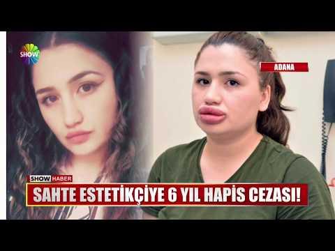 Sahte Estetikçiye 6 Yıl Hapis Cezası!