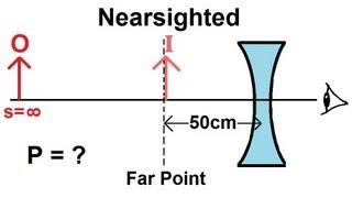 Physics - Optics: Vision Correction (2 of 5) Nearsighted