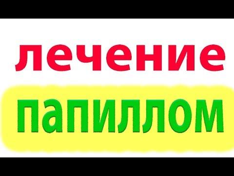 Как лечить бородавки, папилломы  в домашних условиях#малиновский