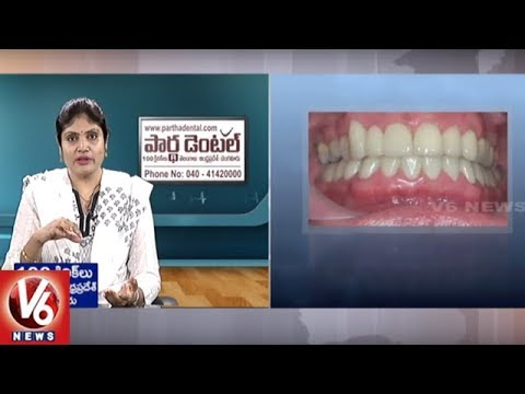 Dental Problems | Reasons And Treatment | Partha Dental Hosp