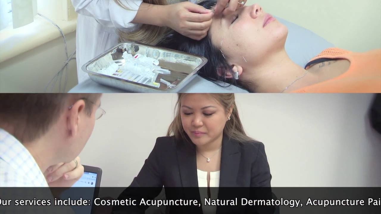Acupuncture with Mai Pham!