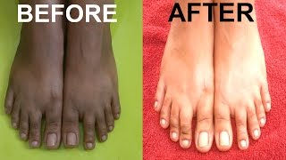HOW TO REMOVE SUN TAN FROM FEET🌞 ~ FEET WHITENING PEDICURE