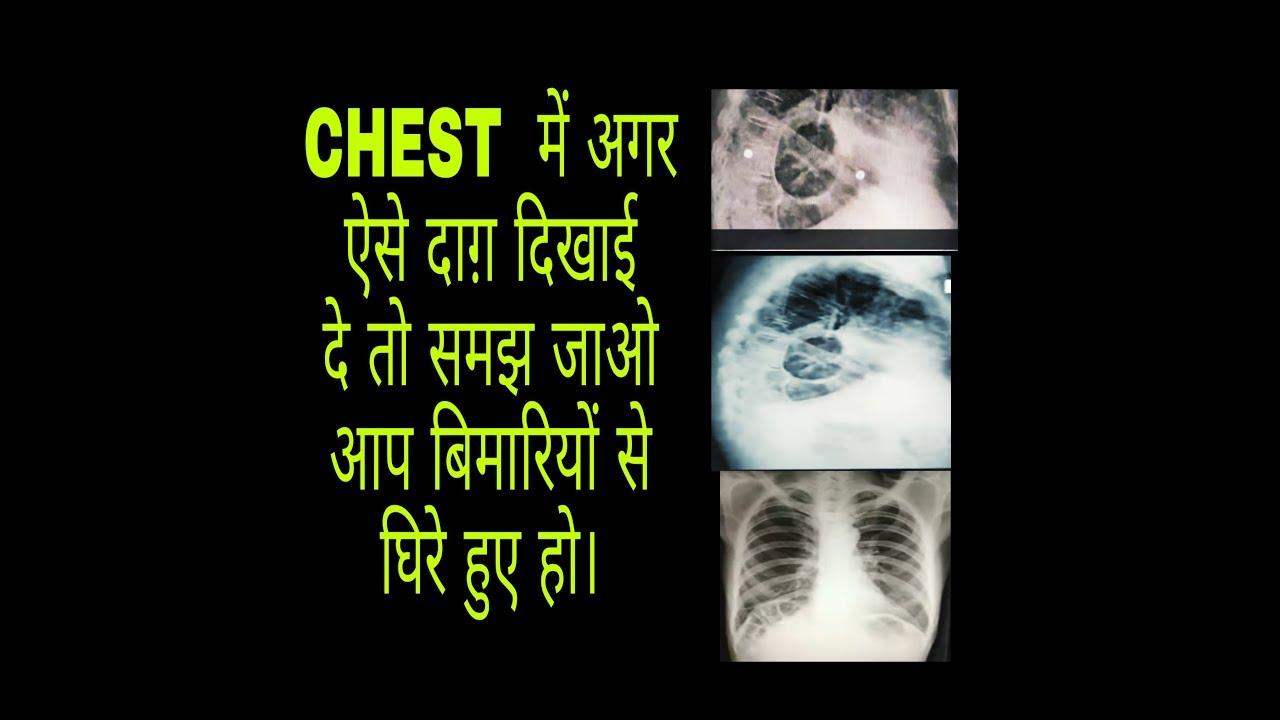 LUNGS DISEASES. फेफड़ेमे रोग के लक्षण ||