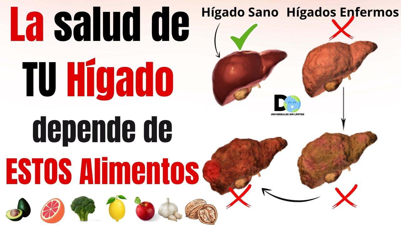 7 Alimentos que Limpian tu Hígado Sobrecargado de Toxinas | Hígado graso | Cirrosis hepática