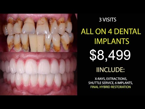 √-all-on-4-dental-implants-mexico-in-just-2-visits