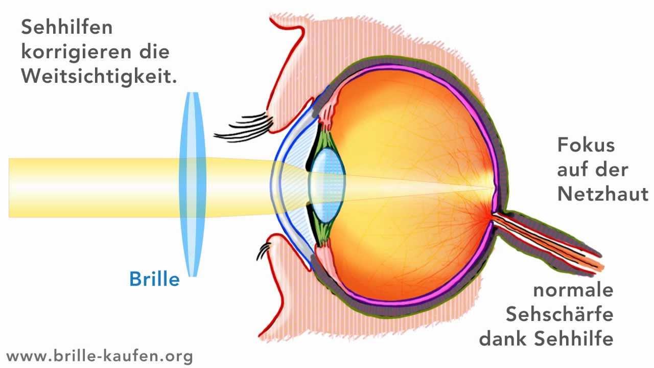 Wie der Wassergeschwulst der Augen bei der Allergie zu entgehen
