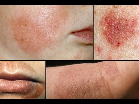 Eczema (Atopic Dermatitis) : What is Eczema (Pictures) and How To Treat Eczema