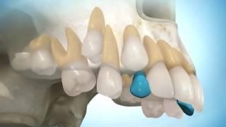 видео стоматология в Одессе