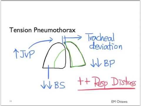 Pneumothorax Part 1