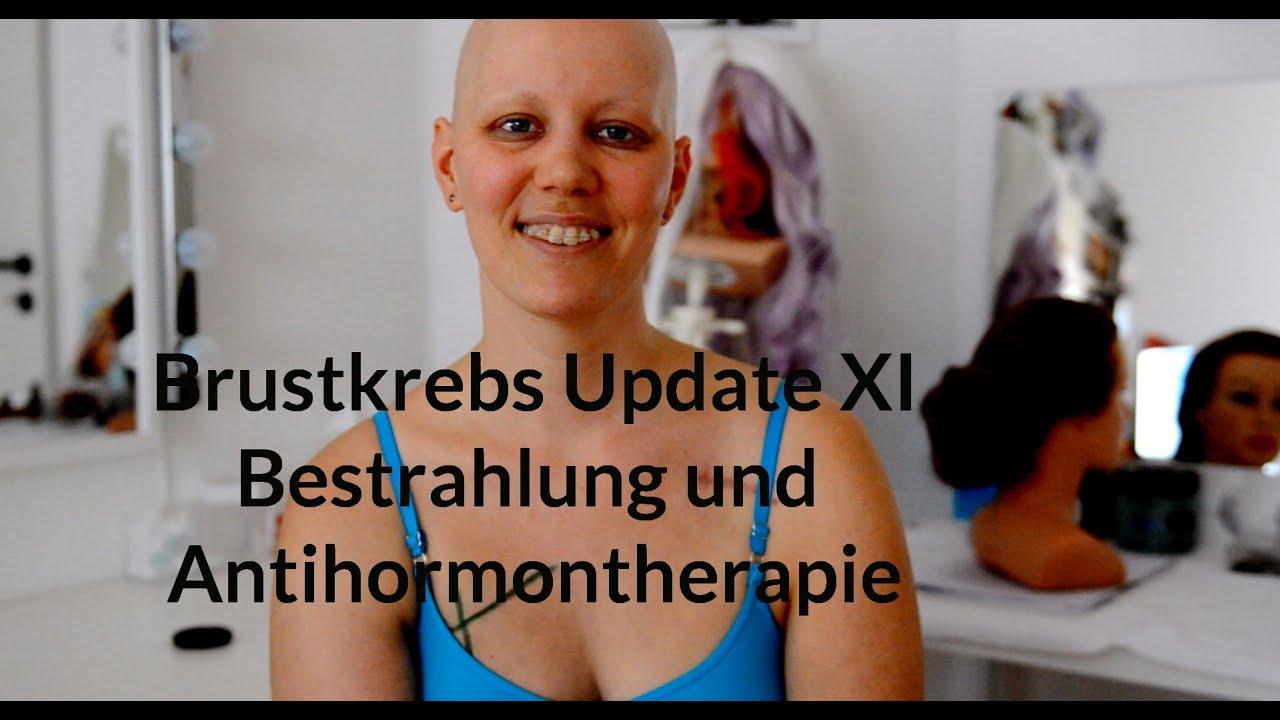 Brustkrebs Chemo Und Bestrahlung