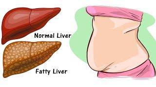 Detox The Liver - Burn Fat Faster