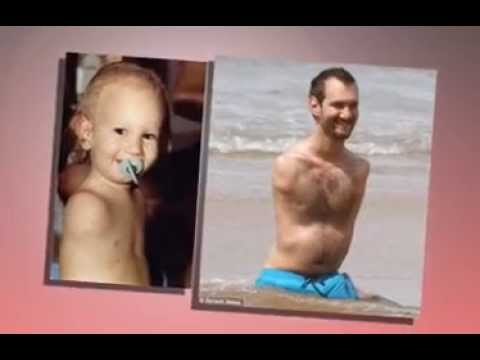Nick Vujicic Life without limbs , EL-Shaddai Tv