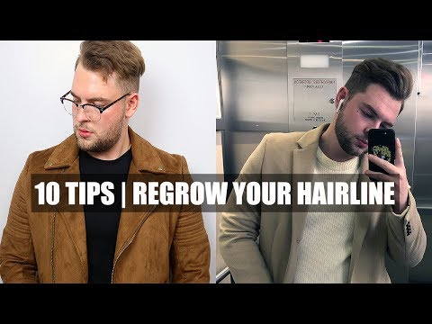 10-quick-tips|-how-to-stop-a-receding-hairline-&-receding-hairline-regrowth