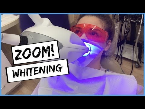 Professional Teeth Whitening Experience | ZOOM!