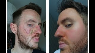 How Matt Healed his Eczema and Overcame Topical Steroid Withdrawal