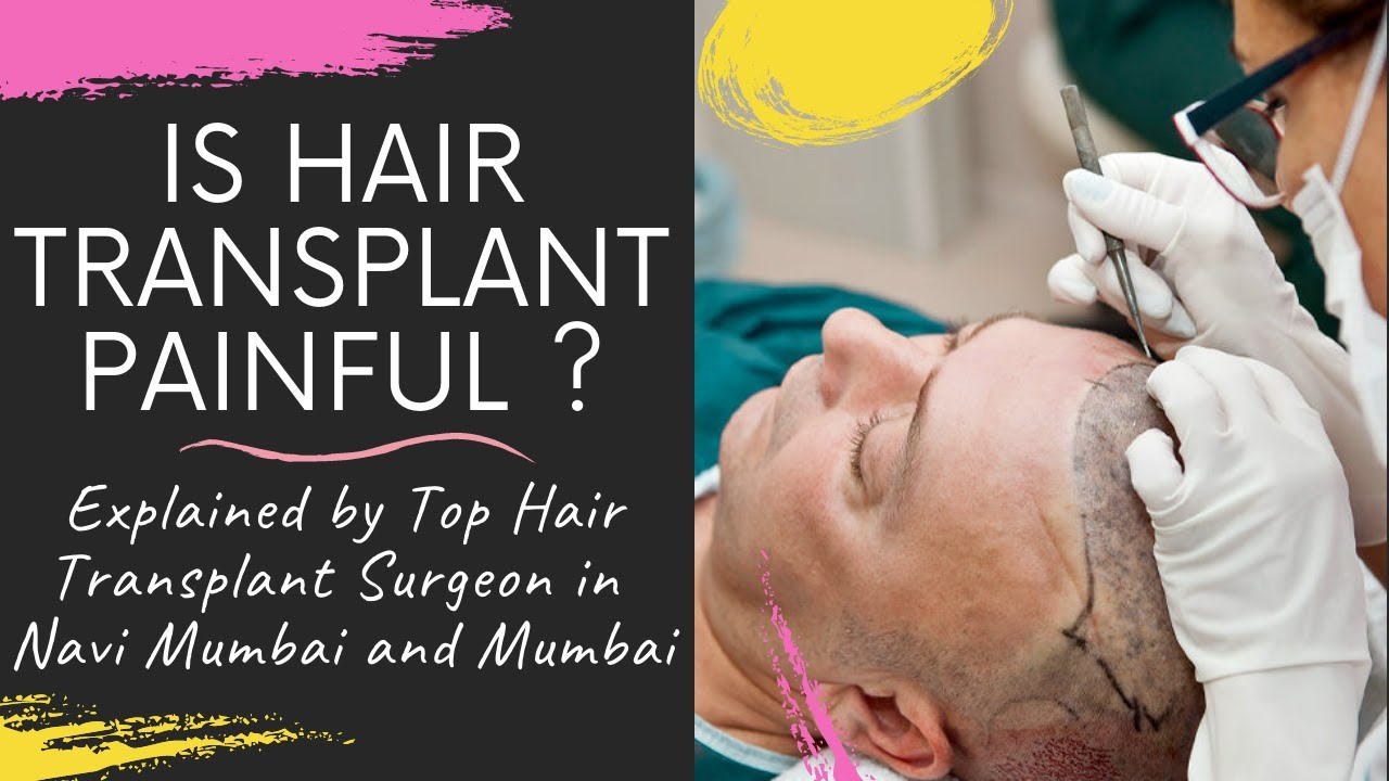 Download IS HAIR TRANSPLANTATION PAINFUL? DOES IT HURT WHILE HAIR TRANSPLANTATION EXPLAIN BY TOP HAIR SURGEON