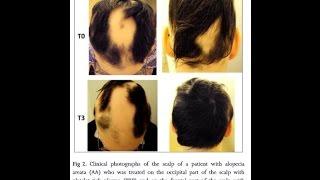 PRP Hair Loss Treatment AMAZING NYC - Manhattan, Brooklyn, Queens