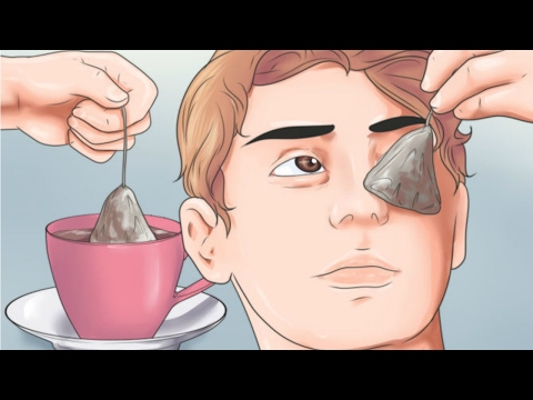 5 NATURAL TREATMENTS TO GET RID OF BAGS UNDER YOUR EYES (COFFEE & BLACK PEPPER IS OUR FAVORITE)