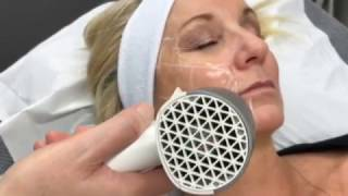 Radio Frequency Skin Tightening thumbnail