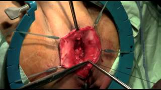 Repeat youtube video Elevate Apical y Posterior