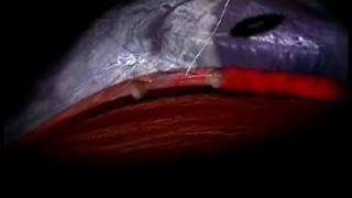 Animated Shunts Surgery Video video thumbnail