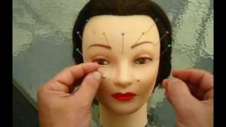 Acupuncture Demo - Bells Palsy, Trigeminal Neuralgia, TMJ, Tinnitus