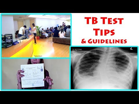 TB Test Guidelines and Tips - UK Fiance Visa Requirements