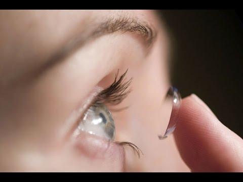 Coi chừng mù mắt vì lạm dụng kính áp tròng