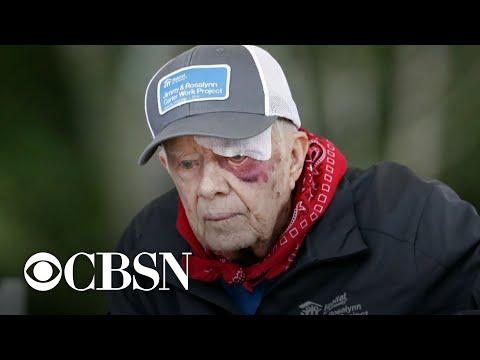 Risks of President Jimmy Carter's operation for brain pressure