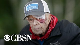 Risks of President Jimmy Carter's operation for brain pressure