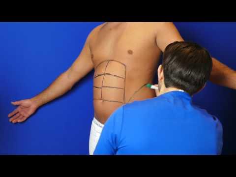Fettabsaugung und HD Body Contouring: Flanken, Taille, Love Handles (Mann)