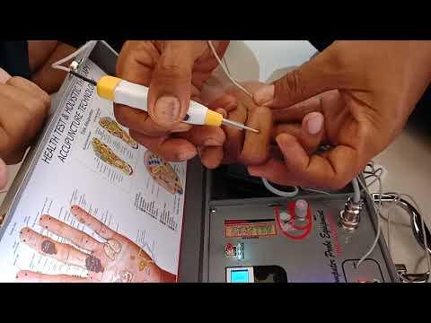 Tutorial Hand akupuntur digital