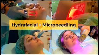 My Hydra Facial & Microneedling for Acne Prone Skin Experience with Dr Nada