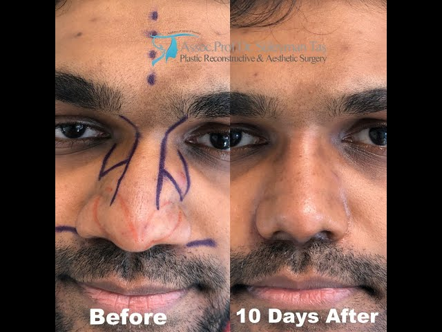 Closed Male Rhinoplasty | Before and 10 Days After