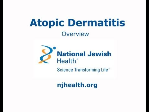 Atopic Dermatitis: Overview