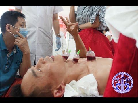 三分鐘快速了解中醫針灸放血療法 Acupuncture and moxibustion - YouTube