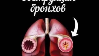 видео Обструктивный бронхит: причины, симптомы и лечение обструкции бронхов