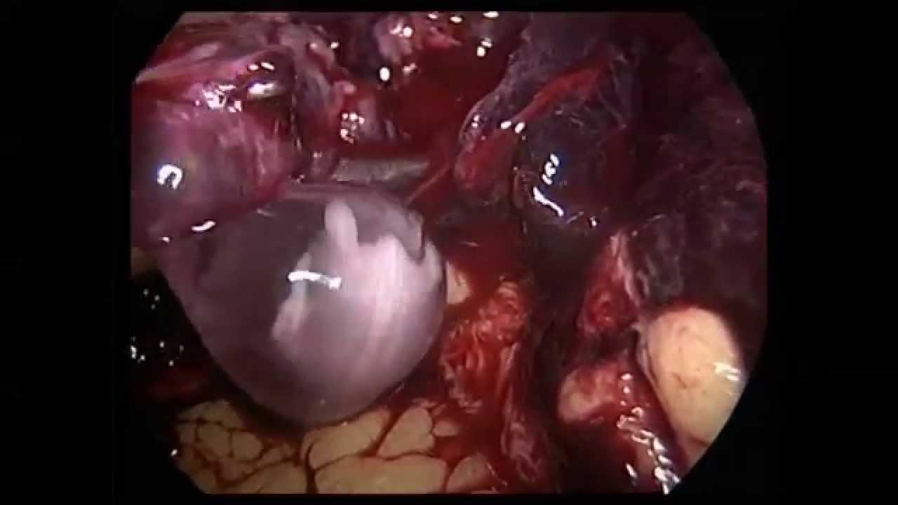 Ruptured Ectopic Pregnancy - Dr. Ashish Bhanot - YouTube
