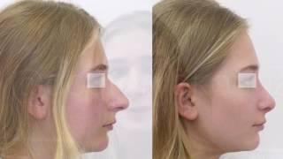 Ринопластика носа, коррекция кончика носа. Видео до и после