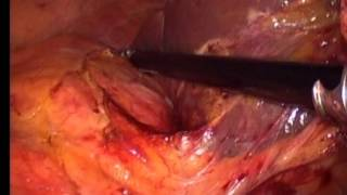 Laparoscopic excision of giant retroperitoneal liposarcoma by Oner Sanli and Tzevat Tefik