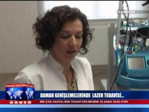 Prof. Dr. Nilgün Şentürk - Lazerle Varis Tedavisi