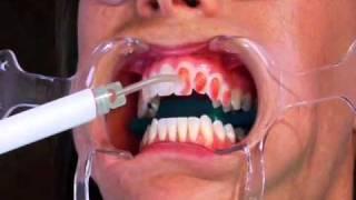 видео Офисное отбеливание зубов, цена